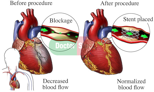 This exhibit compares images before and after coronary artery stent placement. In the first illustration, the heart muscle is damaged by reduced bloodflow due to a blockage of the coronary artery with plaque. The second detail shows the restoration of blood flow to the heart with placement of a coronary artery stent.