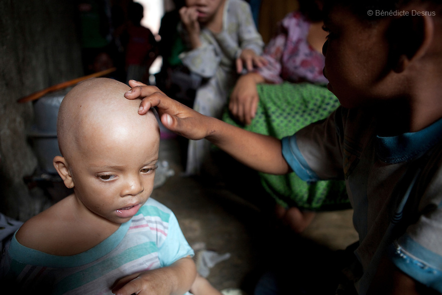 June 30, 2010 - Dar es Salaam, Tanzania - A friend looks at the damaged skin of Albadawi Hamisi a 3 year old albino child. Fatima Husseni and her husband Hamisi Husseni are not Albino, although four of their five children are albinos. Albinism is a recessive gene but when two carriers of the gene have a child it has a one in four chance of getting albinism. Tanzania is believed to have Africa' s largest population of albinos, a genetic condition caused by a lack of melanin in the skin, eyes and hair and has an incidence seven times higher than elsewhere in the world. Over the last three years people with albinism have been threatened by an alarming increase in the criminal trade of Albino body parts. At least 53 albinos have been killed since 2007, some as young as six months old. Many more have been attacked with machetes and their limbs stolen while they are still alive. Witch doctors tell their clients that the body parts will bring them luck in love, life and business. The belief that albino body parts have magical powers has driven thousands of Africa's albinos into hiding, fearful of losing their lives and limbs to unscrupulous dealers who can make up to US$75,000 selling a complete dismembered set. The killings have now spread to neighboring countries, like Kenya, Uganda and Burundi and an international market for albino body parts has been rumored to reach as far as West Africa. Photo credit: Benedicte Desrus