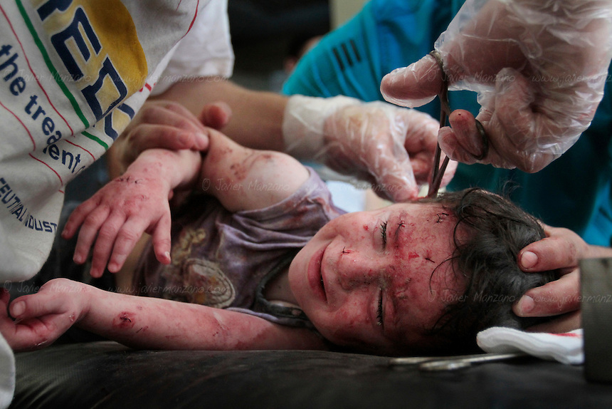 A small child cries in pain as doctors attempt to remove the last pieces of shrapnel after a mortar round exploded in a nearby apartment complex...© Javier Manzano