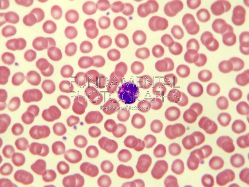 BLOOD CELLS<br /> Eosinophil (LM) 400x mag<br /> Human blood smear showing an eosinophil surrounded by RBCs
