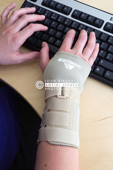Office worker typing on a computer whilst wearing an elasticated wrist support to help alleviate repetitive strain injury (RSI);  RSI most commonly affects the neck; shoulders; arms and hands of keyboard workers and other people who continually carry out same tasks and movements in their work,