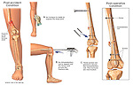Distal Femur Fractures with Retrograde Surgical Fixation with Intramedullary Nail.