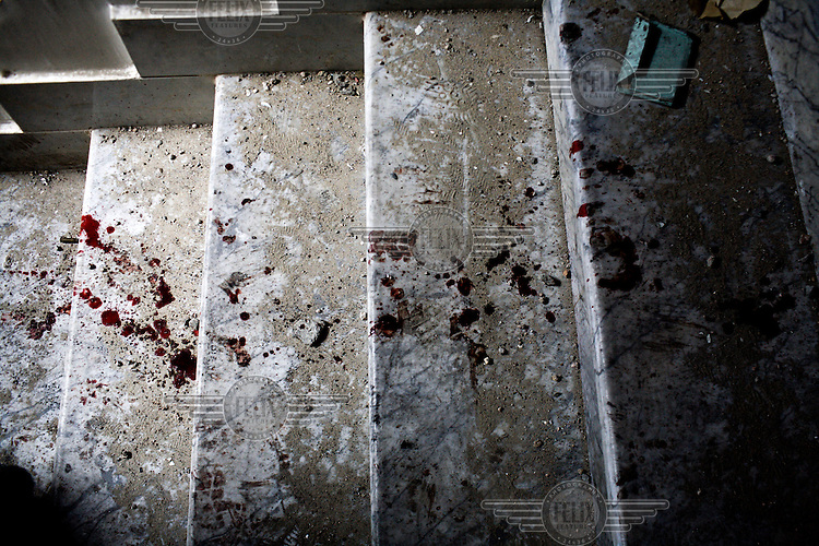 Blood from an injured rebel fighter as he engaged in heavy fighting with Gaddafi forces in central Misurata. On 17 February 2011 Libya saw the beginnings of a revolution against the 41 year regime of Col Muammar Gaddafi.Hours later Guy Martin was seriously injured in an RPG attack.