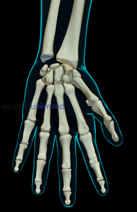 An anterior view of the bones of the left hand. The surface anatomy of the body is semi-transparent and tinted green. Royalty Free