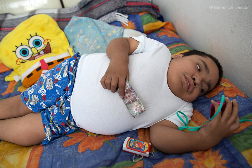 Joaquin Eduardo Torres Gil, 14, is pictured in his bedroom in Mexico City, Mexico, on February 16, 2017. Joaquin is the youngest of five siblings, three of whom have been diagnosed with Morquio syndrome. Morquio syndrome is a rare inherited birth defect that is estimated to occur in one of every 200,000 births. The disease may not be visible at birth; symptoms usually begin between ages 1 and 3. Morquio syndrome is a progressive disease, meaning symptoms get worse as a child grows. Photo credit: Bénédicte Desrus