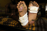 Alfred, 22, was abducted December 27, 2003 by the LRA and walked for five days in barefeet through the bush carrying a B-10 machine gun for the rebels. Small children would beat him and yell at him when he failed to walk on his worstening feet. On teh fift day rocks started piercing his feet and he couldn't walk. An LRA commander took sympathy on him when he discovered that Alfred's wife was from the same village as the commander. The commander took the abductee behind a bush to kill him but let him go instead, ordering him to crawl away out of site of the rest of the group..He wandered in the  bush for three days before an old man found him and summoned the UPDF. He was staying at World Vision's reception center in Gulu. January 24, 2004. (Rick D'Elia)