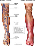Deep Vein Thrombosis (DVT).