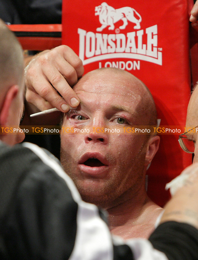 Jon Thaxton - Boxing Cuts - 05/10/07 - MANDATORY CREDIT: Gavin Ellis/TGSPHOTO. Self-Billing applies where appropriate. NO UNPAID USE. Tel: 0845 094 6026
