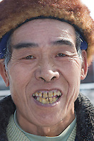Retird in 1997, Yang Tongzai, 67, a former mercury miner in the hole #6 since 1966, lives on his monthly retire pension ¥960 with his family of 6 in Man Shan Special Region in Guizhou. Yang got both pneumoconiosis & mercury poisoning diseases (bad teeth) in the early 80s.