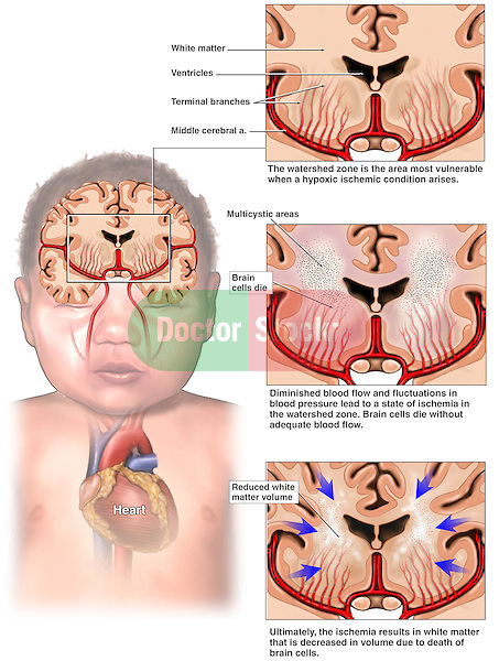 Brain Injury - Hypoxia Ischemia Due to Periventricular Leukomalacia (PVL).  The medical illustration series starts  with an orientation of the heart and brain within a child. Three views of the cut brain with the cerebral arteries and terminal branches show the collapse of the brain in three stages: normal anatomy, hypoxic ischemia (brain cell death) due to low blood pressure, and finally PVL in which the white matter is significantly decreased causing the brain to shrink.