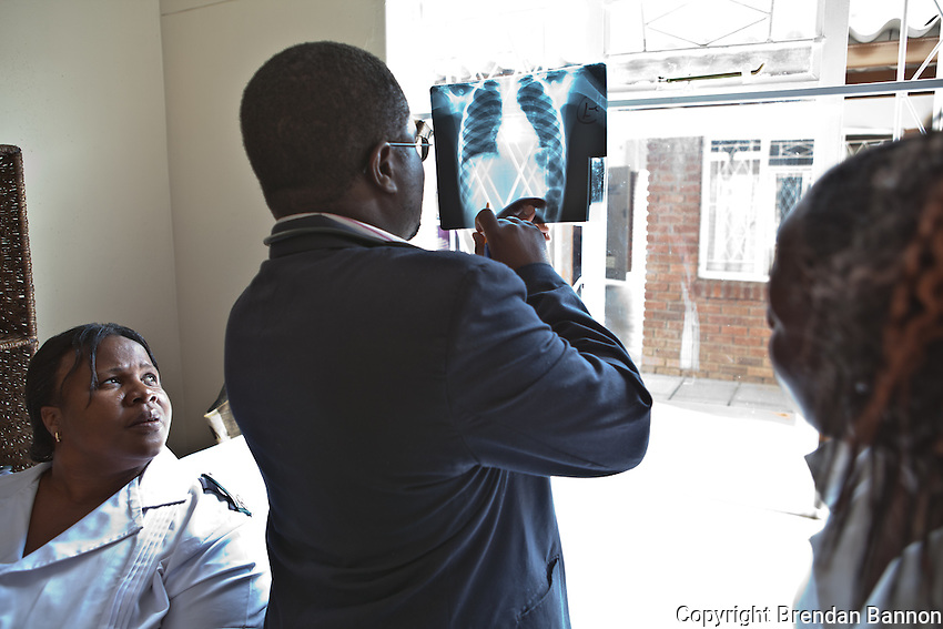MSF Doctor and nurses examine the Chest X-ray of a woman patient. With 14.3 per cent prevalence rate (UNAIDS 2009), Zimbabwe is one of the countries worst affected by the worldwide HIV/AIDS epidemic. Since 2007, MSF has been running an HIV/AIDS project in Epworth. In August 2011, MSF had 12,864 patients under care in both of its clinics there.