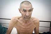 Wir sprechen mit Gheorghe auf der Intensivstation. Er war<br />Fernfahrer, ist weite Strecken durch Russland und durch die<br />Ukraine gefahren. Er ist geschieden und kam in das Krankenhaus,<br />als er sich bereits sehr schlecht f&uuml;hlte, er hatte Wasser in den<br />Lungen. Bei der ersten Untersuchung wurde festgestellt, dass er<br />an TB leidet, weitere Untersuchungen haben ergeben, dass er<br />au&szlig;erdem schon seit sehr langer Zeit HIV-positiv ist und die<br />Krankheit gerade ausgebrochen ist. Er will es nicht wahrhaben,<br />sagt, dass die &Auml;rzte des Krankenhauses fantasieren, er h&auml;tte eine<br />Blutuntersuchung in Chisinau machen lassen und wisse sicher,<br />dass er kein AIDS habe. // Moldova is still the poorest country of Europe. Hopes to join the European Union are high. After progress in the past years tuberculosis is on the rise again. The number of new patients raise since 2010 and is on a level that has not been reached since the late 90s.
