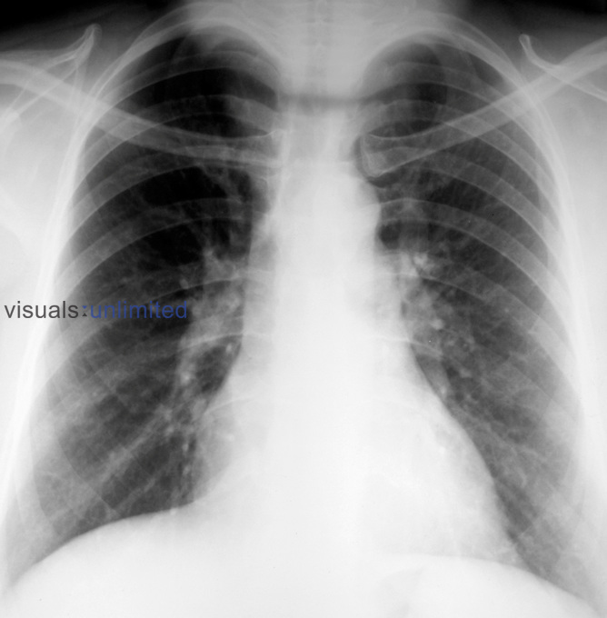 A chest x-ray of a patient with goitre. The grossly enlarged thyroid can be seen entering the chest cavity at the top of the x-ray. ..The thyroid gland produces hormones such as thyroxine which are responsible for dictating the basal metabolic rate of the body. It lies in front of the trachea, at the base of the neck and is composed of two lobes which ma Royalty Free