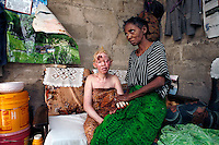 19 year old Hawa Mbegu with her mother at her home. Hawa has a violent form of skin cancer, now too advanced to be treated with radiation therapy, even though it is free for albinos. Hawa's brother, who was also an albino, died of skin cancer six years ago at the age of 22. Discrimination against albinos is a serious problem throughout sub-Saharan Africa, but recently in Tanzania albinos have been killed and mutilated, victims of a growing criminal trade in albino body parts fuelled by superstition and greed. Limbs, skin, hair, genitals and blood are believed by witch doctors to bring good luck, and are sold to clients for large sums of money, carrying with them the promise of instant wealth.