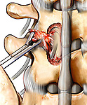 This stock medical image details a posterior view following a left L4-L5 hemi laminectomy. Pituitary forceps are shown removing a heavy scarring from the dura and nerves, secondary to inflammation.