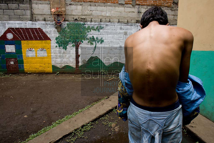 Joel Luna, who believes he is 18, shows a surgical scar made when doctors pulled a private guard's bullet from his back and tried to repair the damage. Luna said a friend stole a cell phone in Guatemala City, and as Luna ran the guard shot him in the back.