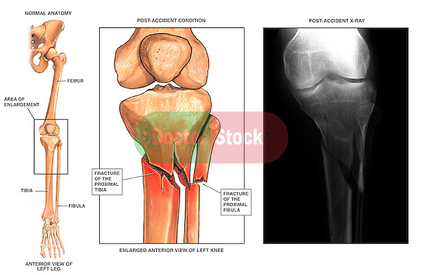 Fractured (Broken) Lower Leg with Radiographic View | Doctor Stock
