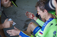Michael Rogers (AUS/Tinkoff-Saxo) badly bruised in a crash  at +50km/h<br /> <br /> Elite Men&rsquo;s Team Time Trial<br /> UCI Road World Championships Richmond 2015 / USA