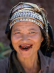 An Akha woman chews betal nuts in Luang Namtha, Laos on Novemeber 9, 2009.   (Photo by Khampha Bouaphanh)