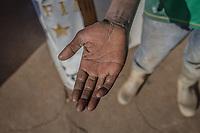 Die von Chemikalien unter Tage geschädigte Hand von Elias M., 40, illegaler Goldgräber aus dem Slum New Canada in Johannesburg, Südafrika.