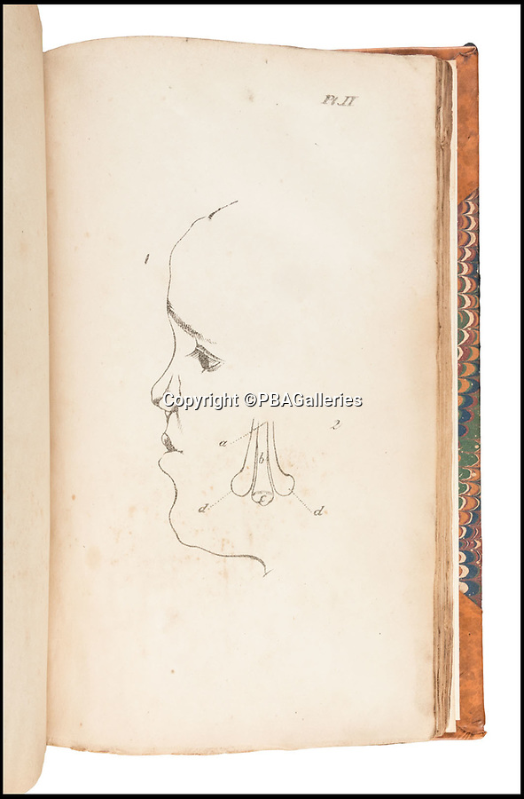 BNPS.co.uk (01202 558833)Pic: PBAGalleries/BNPS<br /> <br /> A 19th century nose reconstruction job...<br /> <br /> An extremely rare 185 year-old book has emerged which reveals plastic surgery is not just a 21st century obsession.<br /> <br /> German professor Johann Friedrich was an early pioneer of performing reconstructive surgery on patients' noses by grafting skin from other parts of the body.<br /> <br /> His celebrated book Surgical Observations on The Restoration of the Nose was translated into English in this 1833 first edition which includes various case studies and supporting diagrams.<br /> <br /> One sketch shows how to remove a tumour from a nose, while another demonstrates how to repair a nose 'mutilated by disease'.