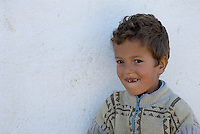 A portrait of a young Moroccan boy, smiling to reveal decayed teeth, near Sefrou, Morocco.