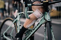 taped up batlle scars<br /> <br /> 104th Tour de France 2017<br /> Stage 3 - Verviers › Longwy (202km)