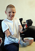 Pictured: Alan Gifford eating his breakfast. Friday 18 August 2017<br /> Re: 11 year old Alan Gifford who has two prosthetic arms, Loughor near Swansea, Wales, UK.