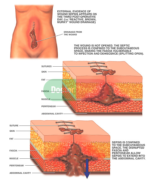 This medical exhibit depicts the progression of a post-operative septic surgical wound following abdominal surgery.  The first illustration pictures the gross appearance of the wound on the female abdomen, with reactive, brown and murky infection drainage. The second illustration displays an enlarged cut-away view of the skin with the appearance of the sutured wound, progressing to infection and dehiscence, or splitting open of the sutures. It includes labels for sutures, skin, fat, fat fascia, muscle, peritoneum and the abdominal cavity. The third illustration pictures the infected material in the subcutaneous space, extending through the disrupted fascia into the abdominal cavity.