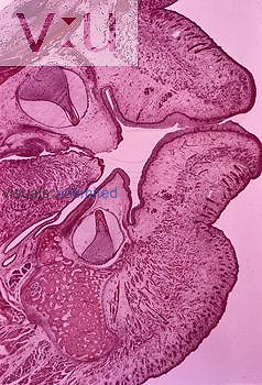 Section of the lips and developing incisors of a 7-month human fetus. LM X3.