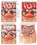 This medical exhibit uses four images to portray inflammation of the pelvis with adhesions and obstruction of the fallopian, or uterine, tubes. The first graphic depicts the normal bowel, uterus, fallopian tubes and ovaries in an anterior (front) cut-away view of the abdomen. The second illustration displays inflammation of the pelvis. The final two images show post-inflammation pelvic adhesions binding and obstructing the fallopian tubes.