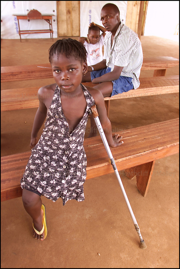 9 YEAR OLD BINTU AMARAH WHO LOST HER LEG TO MACHETE WIELDING REBELS IN JANUARY 1999 IN A CAMP FOR AMPUTEES ON THE OUTSKIRTS OF FREETOWN,SIERRA LEONE.1/9/00