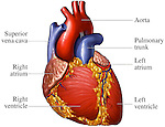 This medical exhibit pictures the anatomy of the heart from an anterior (front) view. Labels identify the superior vena cava, right atrium, right ventricle, aorta, pulmonary trunk, left atrium, and left ventricle.