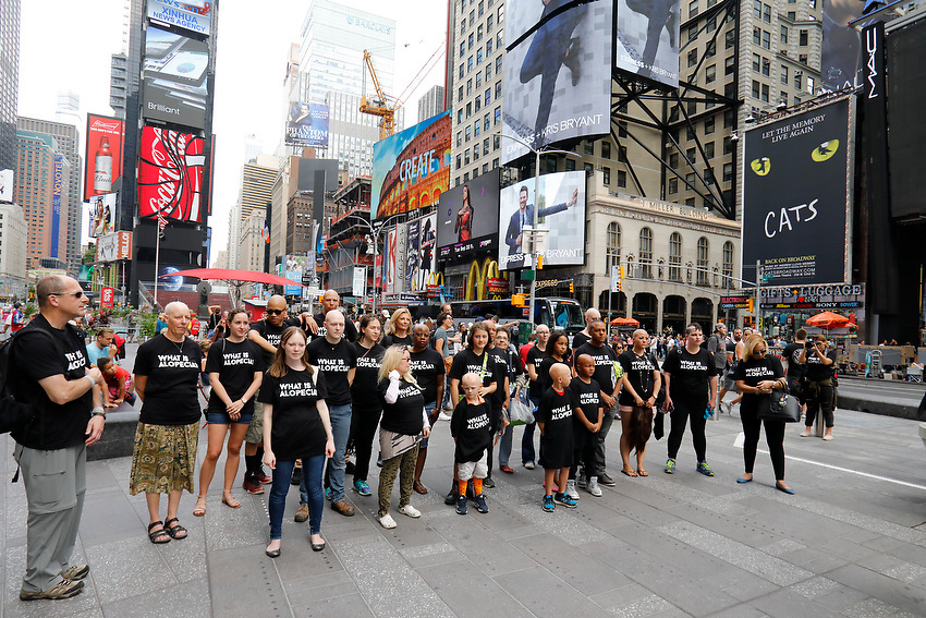 Alopecia Areata Flash Mob in NYC.<br /> In Times Square.