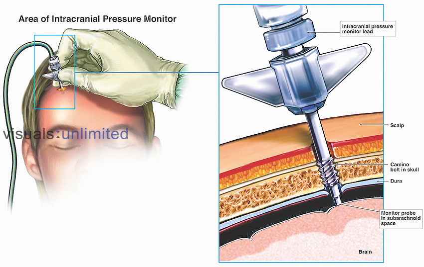 Brain Surgery - Placement of Intracranial Pressure Monitor. This medical exhibit illustrates the correct placement of an intracranial pressure monitor.