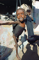 Angola. Cuando Cubango. Mavinga. Therapeutic and suplementary feeding center run by MSF (M?decins Sans Frontires) Switzerland. Every morning, children are weighed and their height measured to determine their degree of malnutrition.Young boy cries. His eyes wide open are full of tears. © 2002 Didier Ruef