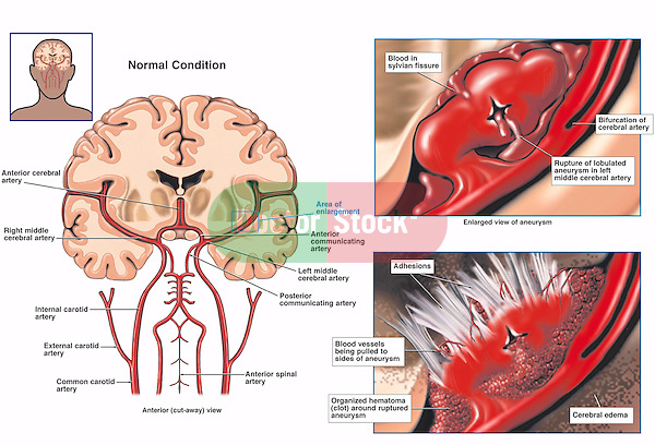 Accurately depicts the progression of a middle cerebral artery (MCA) aneurysm rupture in the brain. Arteries labeled: common carotid, external carotid, right meddle cerebral, anterior cerebral, anterior spinal, posterior communicating, and anterior communicating. Shows rupturing of the cerebral artery with blood in the sylvian fissure. Also displays the worsened condition with adhesions, cerebral edema, displaced blood vessels, and an organized hematoma (clot).