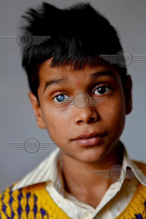 Sonu from India awaits cataract treatment at the GETA eye hospital.