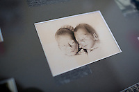 A picture of Ronnie and Randy Russo as babies hangs in their bedroom at the residences in Malone Park at the Fernald Developmental Center in Waltham, Massachusetts, USA.  Ronnie and his twin Randy, 60, both blind and unable to speak, have lived at the Fernald Center for 55 years.