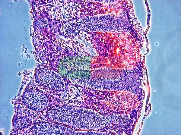 LM, pathology, colon section, 400x
