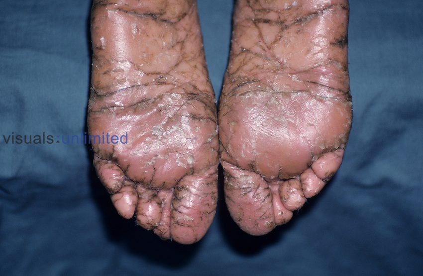 Lamellar Ichthyosis on the soles of human feet.