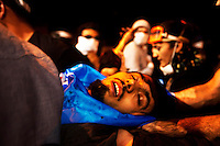 Turkey/Istanbul/June 3 ,2013.An injured protestor after of the clashes with police in Besiktas area in Istanbul.Thousands of  Anti-government Turkish protesters  fight with police and they called on Prime Minister Recep Tayyip Erdogan to resign. Giorgos Moutafis /Felix Features