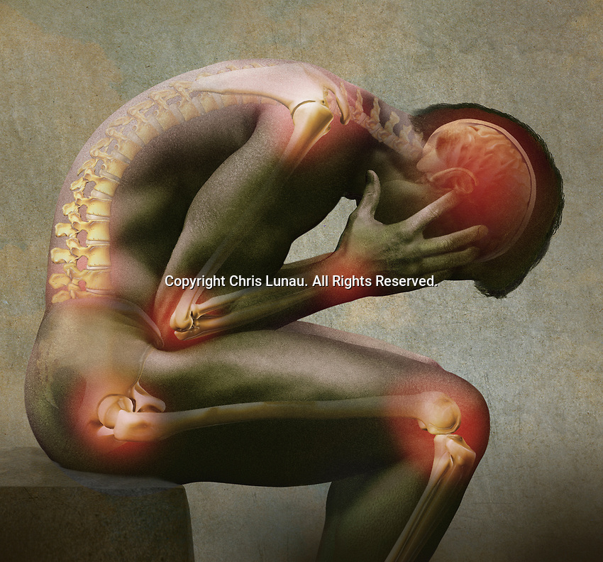 Computer generated image of man bent double suffering with joint pain