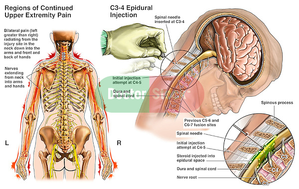 Pain Management Techniques - Cervical Epidural Steroid Injection, This custom exhibit features multiple images to describe relief of chronic radiating pain secondary to a fused spine. Images include the following: 1. Posterior view of the female torso illustrating the nerves of the spine with radiating pain  from the neck to the upper extremities bilaterally, 2. Additionally a side cut-away view and inset reveal the placement of a steroid injections at C4-5 and C5-6 to interrupt the pain cycle.