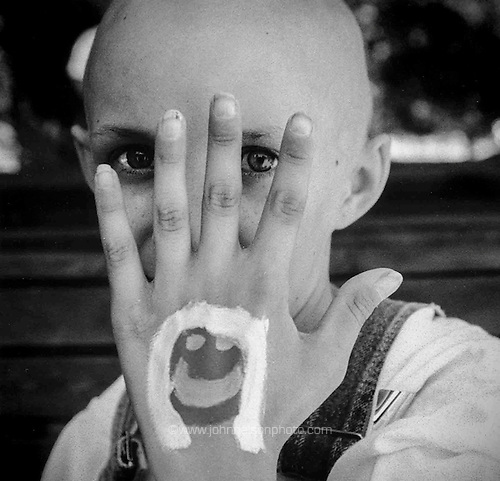 girl at camp for kids with cancer.