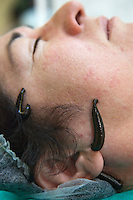 Moscow, Russia, 24/09/2011..A patient is treated with leeches at a private central Moscow clinic. The clinic, which specialises in natural medical treatments, uses leeches to treat a range of ailments.
