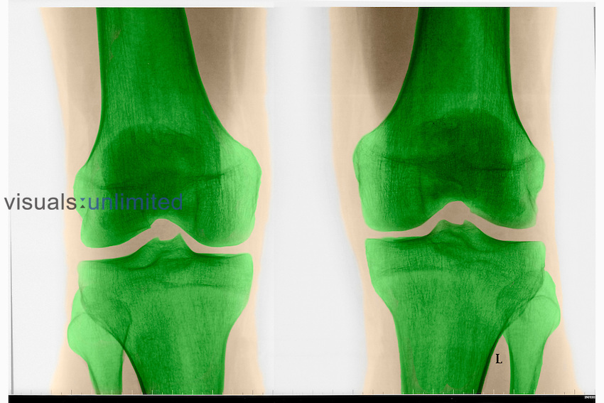 X-ray of adult knee