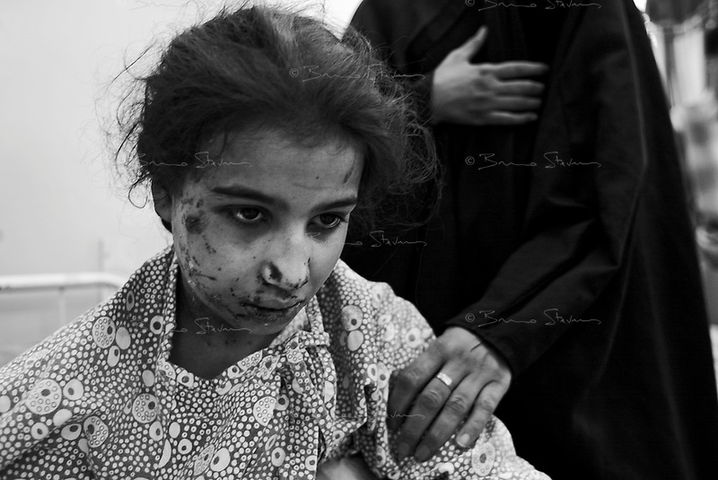 Baghdad, Iraq, April 1, 2003.Fatima Abel Rassud, 11, was burned to the face and legs in the explosion of a US Bomb on her home in Southern Baghdad; 7 members of her family including her mother, grand-mother, sister, two brothers and uncle were killed in the event; she is in deep psychological shock.