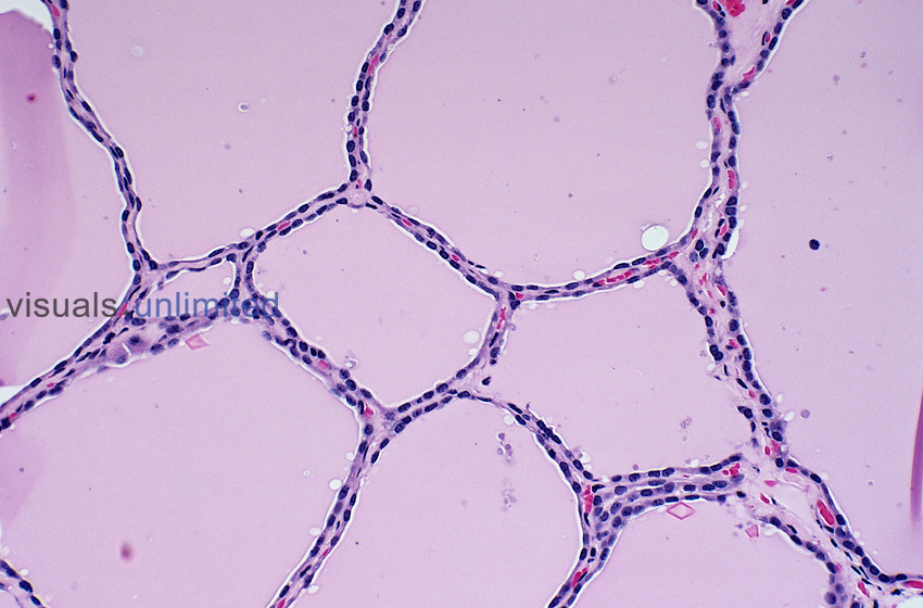 Normal human thyroid gland showing follicles lined by cuboidal epithelium and filled with pink-staining colloid in a 34 year-old man. Note the capillaries in the thin follicular walls. H&E stain, LM X64.
