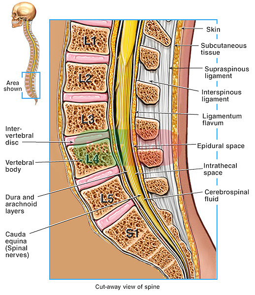 This illustration series depicts the anatomy of the lumbosacral (lumbar and sacral) spine from a mid-sagittal cut-away view with an epidural spinal needle poised ready to pierce the L4-5 interspace. Extensive labels include intervertebral disc, vertebral body, ligamentum flavum, L1, L2, L3, L4, L5, S1, dura mater and arachnoid, cauda equina, cerebrospinal fluid (CSF), spinal cord, supraspinous ligament and intrathecal space.